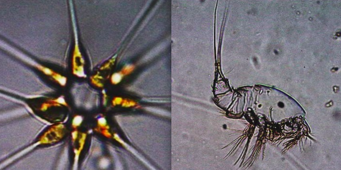 plankton outlines from the microscope